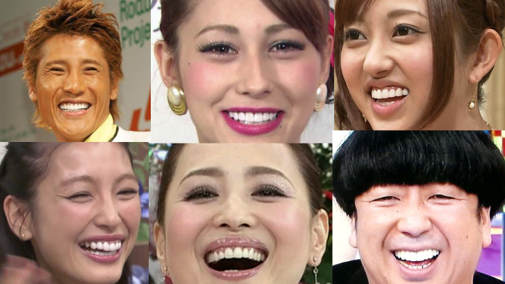 芸能人の歯が真っ白いワケアイキャッチ