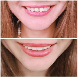 五十嵐歯科クリニックのスーパーベニヤ治療
