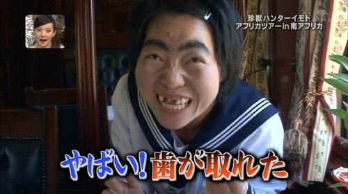 イモトアヤコが前歯の治療に取り掛かったきっかけ