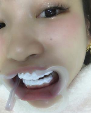 桃行きつけの歯医者