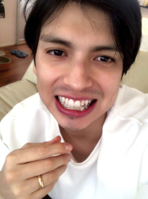 アレクサンダーの歯並び