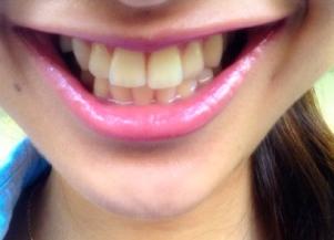 近藤あやの過去と現在の歯の白さ比較2015