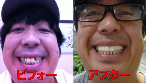 日村勇紀さんのビフォーアフター