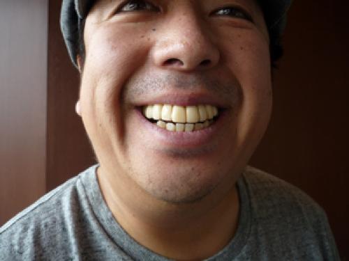 日村勇紀の仮歯期間