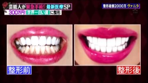 ヴァニラの歯の整形ビフォーアフター比較