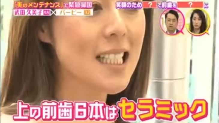 武田久美子がセラミック治療を施している歯医者(愛用グッズ情報アリ)