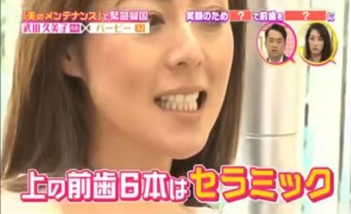 武田久美子の上の歯6本はセラミック