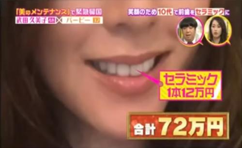 武田久美子の歯は1本12万円