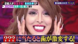 整形サイボーグヴァニラが歯にかけたお金とその方法【歯医者情報あり】